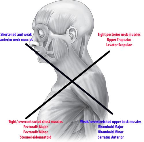 Felső keresztezett szindróma szemléltetése