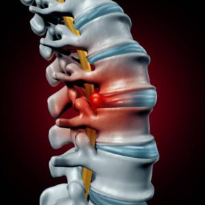 nyaki gerinc degeneráció