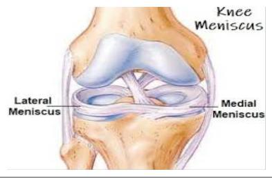 hogyan lehet enyhíteni az ízületi fájdalmakat edzés után hogyan gyógyítható a fájó térdízület