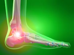 izom- és ízületi gerincfájdalom a lábak térdízületeinek gyulladása