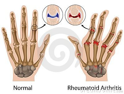 fájó hüvelykujjízület a kezét lábfájás a síelés után